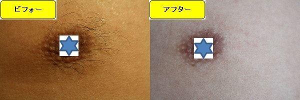 メンズ全身脱毛のクリニックである湘南美容クリニックで乳輪周囲と胸を脱毛した効果を示す画像 施術前と第3回目照射後の比較画像