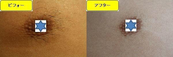 メンズ全身脱毛のクリニックである湘南美容クリニックで乳輪周囲と胸を脱毛した効果を示す画像 施術前と第3回目照射後の1週間後の比較画像