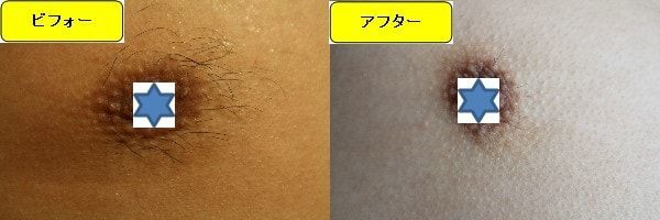 メンズ全身脱毛のクリニックである湘南美容クリニックで乳輪周囲と胸を脱毛した効果を示す画像 施術前と第3回目照射後の1ヶ月後の比較画像
