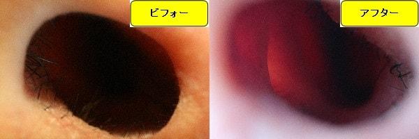 メンズ全身脱毛のクリニックであるメンズリゼで鼻毛脱毛した効果を示す画像 施術前と第4回目照射後の比較画像
