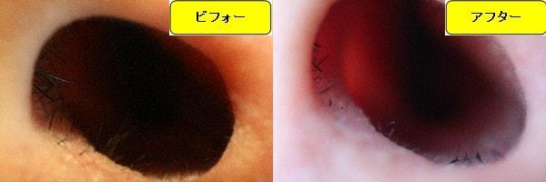 メンズ全身脱毛のクリニックであるメンズリゼで鼻毛脱毛した効果を示す画像 施術前と第4回目照射後の1週間後の比較画像