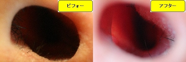 メンズ全身脱毛のクリニックであるメンズリゼで鼻毛脱毛した効果を示す画像 施術前と第4回目照射後の1ヶ月後の比較画像