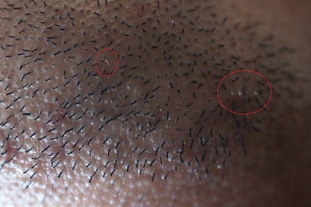 メンズTBCでヒゲのニードル脱毛をする前の画像