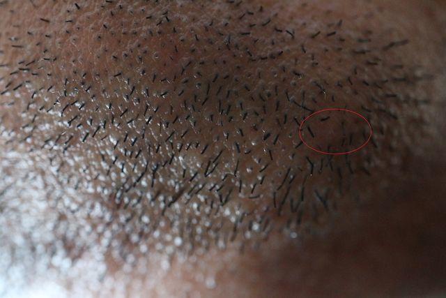 メンズTBCでヒゲのニードル脱毛をした直後の画像