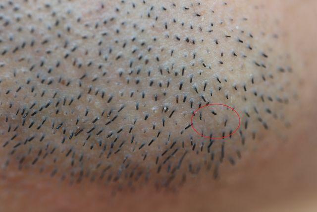 メンズTBCでヒゲのニードル脱毛をした1週間後の画像