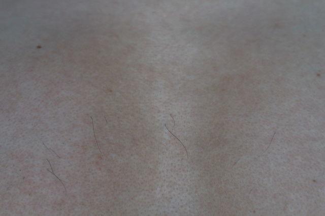 メンズTBCで胸毛のニードル脱毛をする前の画像