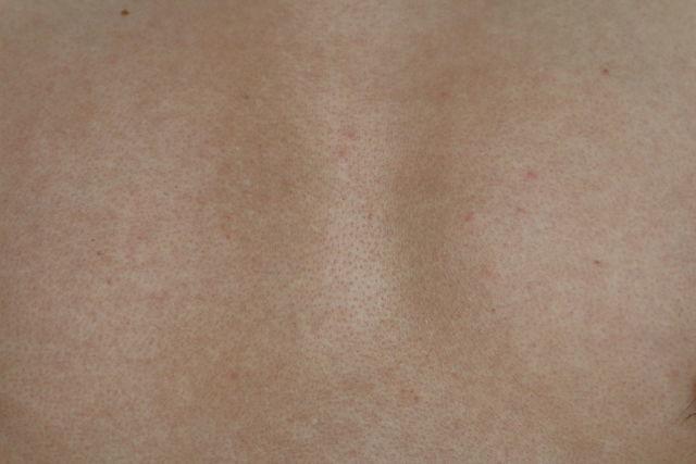 メンズTBCで胸毛のニードル脱毛をした直後の画像