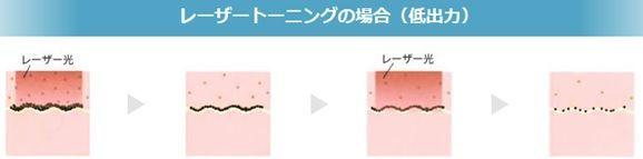 シミ取り治療であるレーザートーニングを示す画像