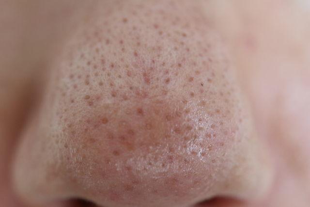 スキンケアトライアウトをする前の鼻の写真