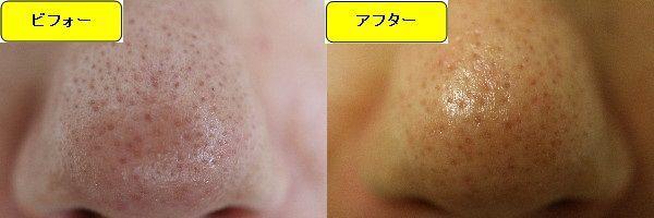 スキンケアトライアルの施術前と施術直後の鼻の写真