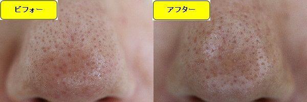 スキンケアトライアルの施術前と施術1週間後の鼻の写真