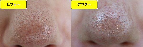 スキンケアトライアルの施術前と施術1ヶ月後の鼻の写真