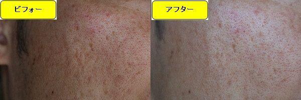 スキンケアトライアルの施術前と施術1ヶ月後の顔の右側の写真