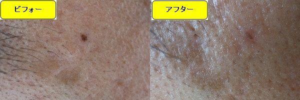 ほくろを取る前とほくろを取った1ヶ月後の眉下の比較写真