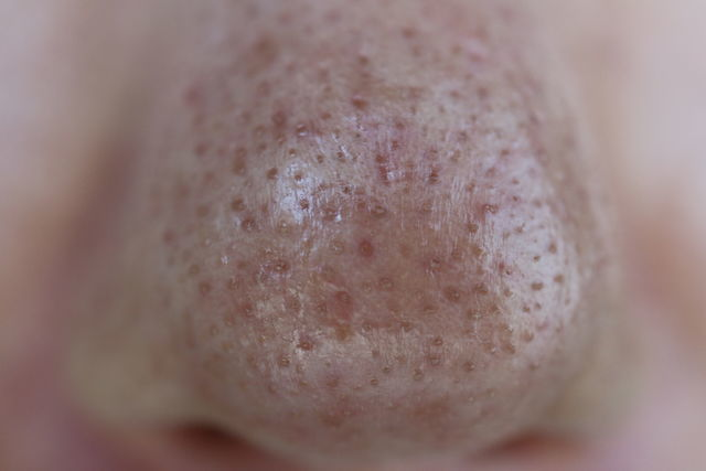 ニキビ跡治療をする前の鼻の写真