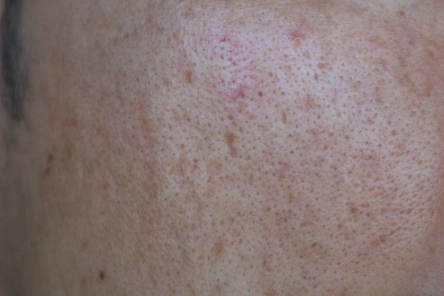 ニキビ跡治療をする前の顔の左側の写真