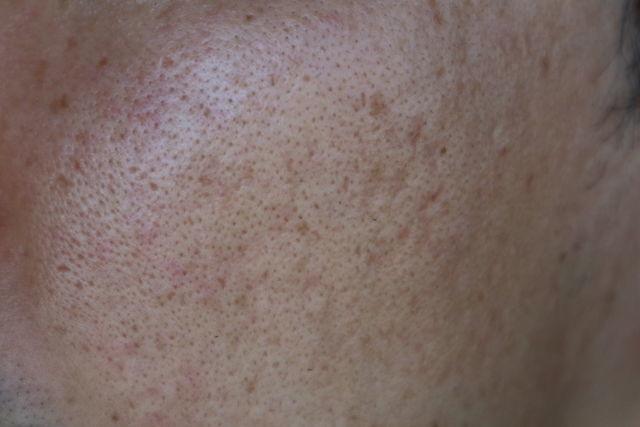 ニキビ跡治療をする前の顔の右側の写真