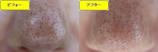 ニキビ跡治療前と第1回目ニキビ跡治療1日後の鼻の比較写真