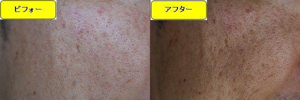 ニキビ跡治療前と第1回目ニキビ跡治療1日後の顔の左側の比較写真