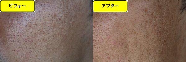 ニキビ跡治療前と第1回目ニキビ跡治療1日後の顔の右側の比較写真