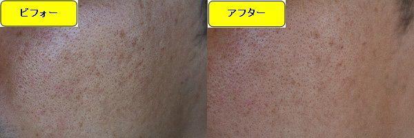 ニキビ跡治療前と第1回目ニキビ跡治療1週間後の顔の右側の比較写真