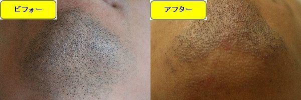 ヒゲ脱毛施術前と第4回目照射後の顎下の比較画像