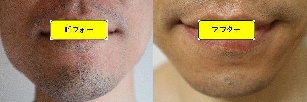 ヒゲ脱毛施術前と第4回目照射後の正面側の比較画像