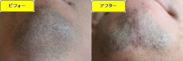 ヒゲ脱毛施術前と第4回目照射1週間後の顎下の比較画像