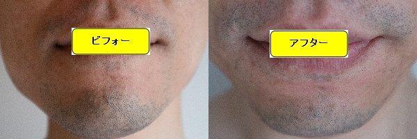 ヒゲ脱毛施術前と第4回目照射1週間後の正面側の比較画像