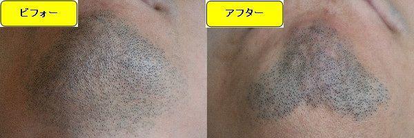 ヒゲ脱毛施術前と第4回目照射1ヶ月後の顎下の比較画像
