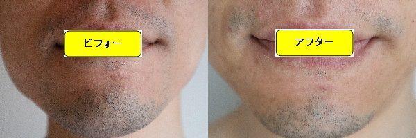 ヒゲ脱毛施術前と第4回目照射1ヶ月後の正面側の比較画像