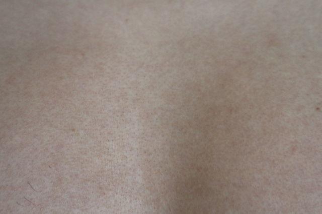 メンズTBCで胸毛のニードル脱毛をした1ヶ月後の画像