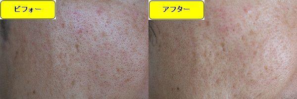 ニキビ跡治療前と第1回目ニキビ跡治療1ヶ月後の顔の左側の比較写真