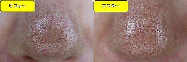 ニキビ跡治療前と第1回目ニキビ跡治療1週間後の鼻の比較写真