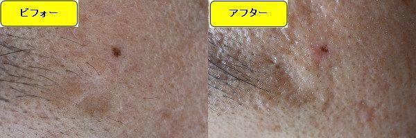 ほくろを取る前とほくろを取った2ヶ月後の眉下の比較写真
