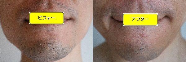 ヒゲ脱毛施術前と第5回目照射後の正面側の比較画像