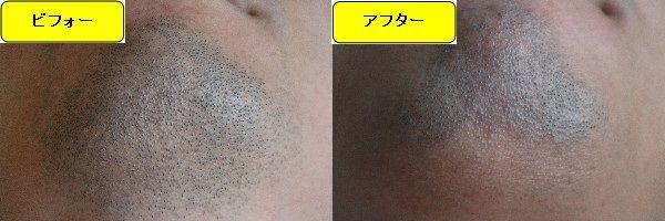 ヒゲ脱毛施術前と第5回目照射後の顎下の比較画像