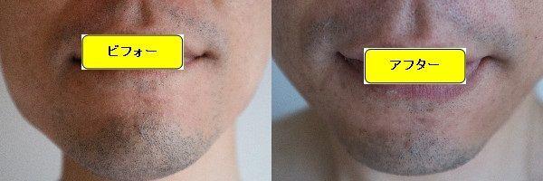 ヒゲ脱毛施術前と第5回目照射1週間後の正面側の比較画像