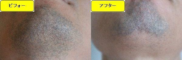 ヒゲ脱毛施術前と第5回目照射1週間後の顎下の比較画像