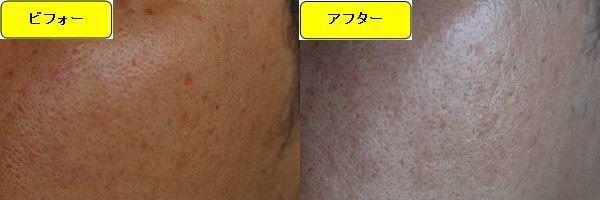 ニキビ跡治療前と第2回目ニキビ跡治療1日後の顔の右側の比較写真