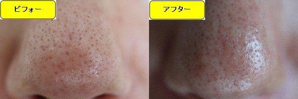 ニキビ跡治療前と第2回目ニキビ跡治療1日後の鼻の比較写真