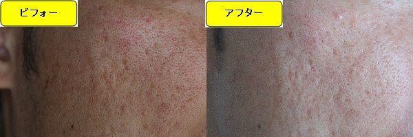 ニキビ跡治療前と第2回目ニキビ跡治療1日後の顔の左側の比較写真