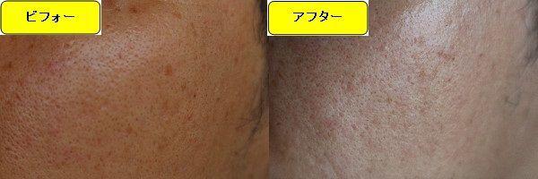 ニキビ跡治療前と第2回目ニキビ跡治療1週間後の顔の右側の比較写真