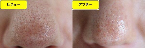 ニキビ跡治療前と第2回目ニキビ跡治療1週間後の鼻の比較写真