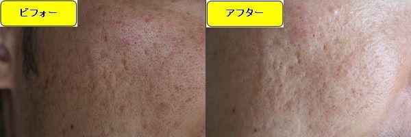 ニキビ跡治療前と第2回目ニキビ跡治療1週間後の顔の左側の比較写真