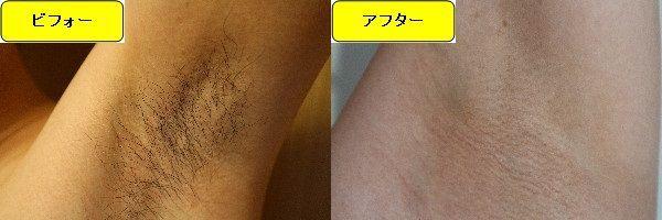 メンズ全身脱毛のクリニックである湘南美容クリニックでワキ毛脱毛した効果を示す画像 施術前と第5回目照射後の比較画像