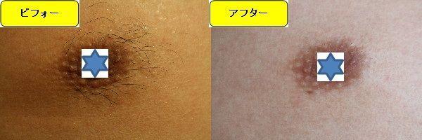 メンズ全身脱毛のクリニックである湘南美容クリニックで乳輪周囲と胸を脱毛した効果を示す画像 施術前と第4回目照射後の比較画像