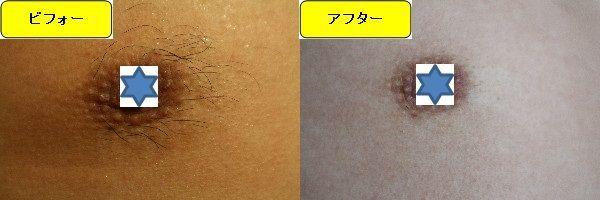 メンズ全身脱毛のクリニックである湘南美容クリニックで乳輪周囲と胸を脱毛した効果を示す画像 施術前と第4回目照射後の1週間後の比較画像