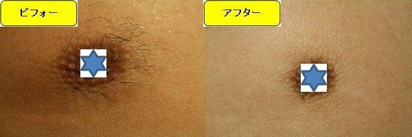 メンズ全身脱毛のクリニックである湘南美容クリニックで乳輪周囲と胸を脱毛した効果を示す画像 施術前と第4回目照射後の1ヶ月後の比較画像