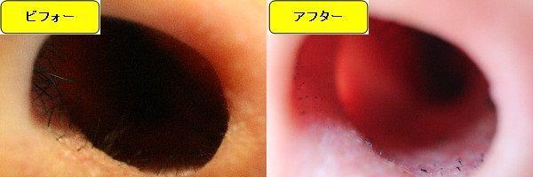 メンズ全身脱毛のクリニックであるメンズリゼで鼻毛脱毛した効果を示す画像 施術前と第5回目照射後の比較画像